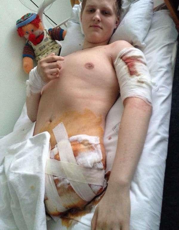 Sergeynhận ra mình bị mất một chân sau tai nạn.