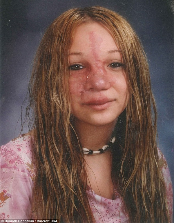 Khi còn ở tuổi thiếu niên, Hiles đã bị bạn bè chế giễu với những đường vân lạ trên mặt.