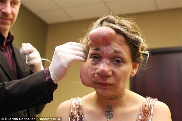 Những quả bóng phình to trên mặt khiến Hiles mất máu quá nhiều.