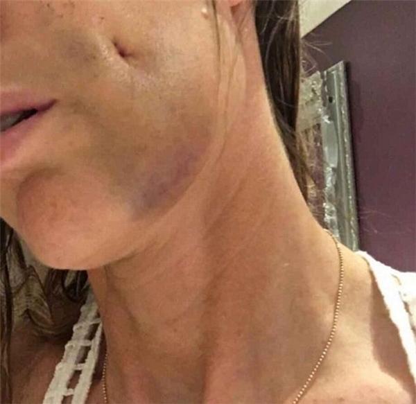 """""""Má lúm"""" trông như vết sẹo lõm trên gương mặt AJ."""
