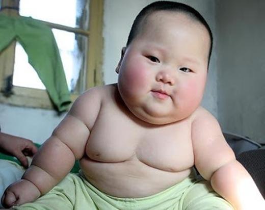 Dù tự hết nhưng nếu không điều chỉnh chế độ ăn, trẻ có thể chuyển sang bệnh béo phì dạng nặng.