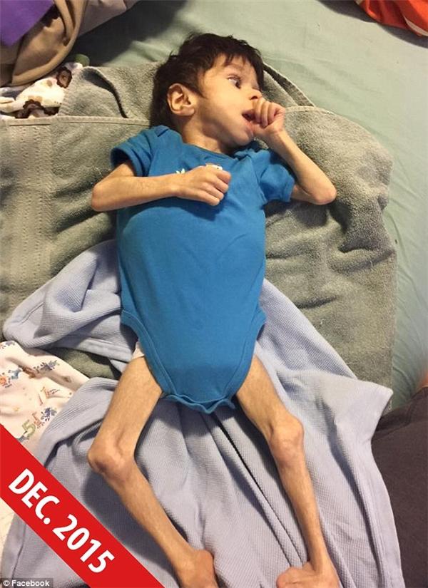 Sự hồi phục thần kỳ của cậu bé 7 tuổi nặng 3,6kg suýt chết ở trại trẻ