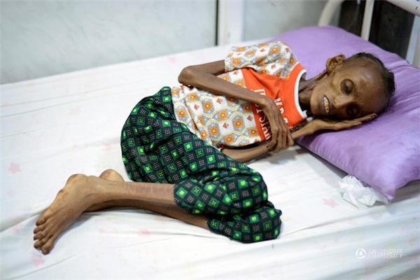 Emaciated Saida Ahmad Baghili là một trong số 14 triệungười dân đang phải chịu đựng tình trạng thiếu thốn nguồn lương thực tại Yemen.