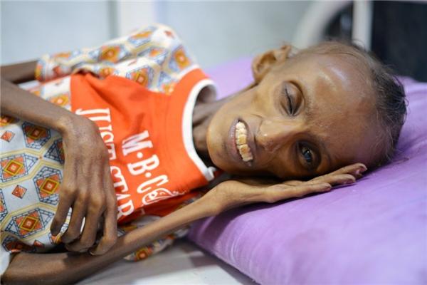 Không chỉ riêng Baghili, phần lớn cư dân tại Yemen cũng có hoàn cảnh tương tự do hậu quả của cuộc nội chiến.