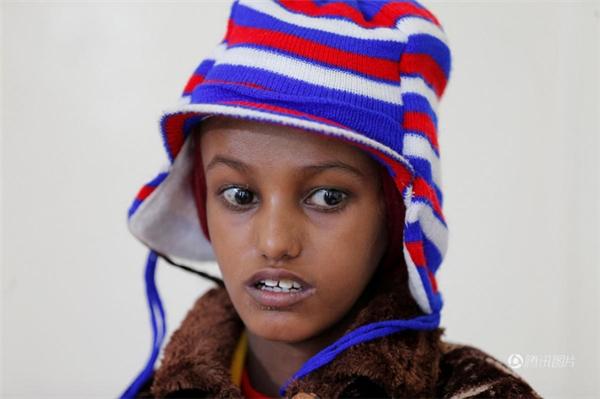 Sau hơn một tháng điều trị, cơ thể Baghili dần có da thịt trở lại, nhất là khuôn mặt trở nên đầy đặn và không còn xanh xao như trước.