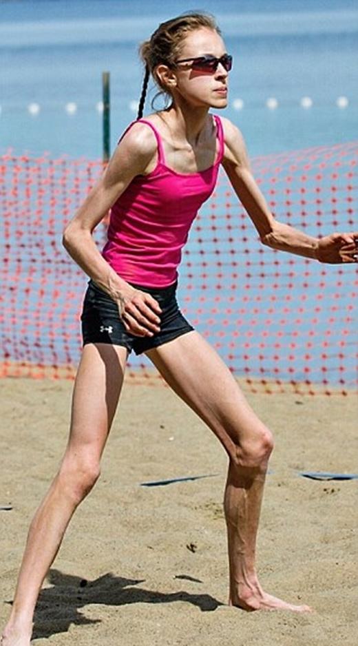 Cơ thể gầy gò đến mức có thể thấy rõ xương và gân của cô gái.