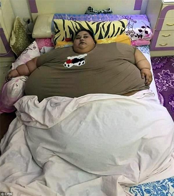 Cô gái có thân hình to bằng chiếc giường. (Ảnh: CEN)