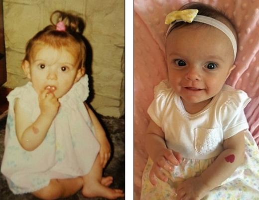 Ảnh lúc nhỏ của Lois (trái)và ảnhsơ sinh của bé Heidi.