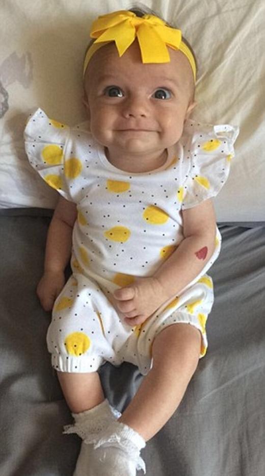 Vài tháng sau khi chào đời, vệt đỏ trên tay bé Heidi càng lúc càng sẫm màu hơn.