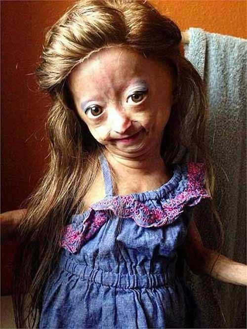 Nghị lực đáng khâm phục của bé gái 10 tuổi mắc chứng lão hóa sớm