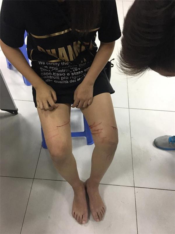 ụ việc được cho là xảy ra vào chiều tối ngày 11/12 vừa qua trên đường Nguyễn Văn Cừ, quận Long Biên, Hà Nội với cô gái trẻ có tên P.