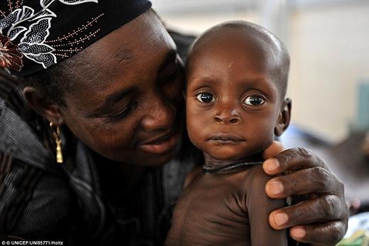Một người phụ nữ ôm chặt con mình tại một trung tâm phục hồi dinh dưỡng ở phía nam khu vực Zinder của Niger.