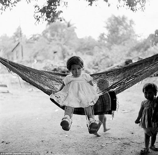 Cùng với một đứa trẻ khác gần đó đang đeo một khung chỉnh xương chân hỗ trợ cho khả năng đi lại khi bé đang ngồi trên chiếc võng bên ngoài trung tâm hỗ trợ sức khỏe của Unicef.