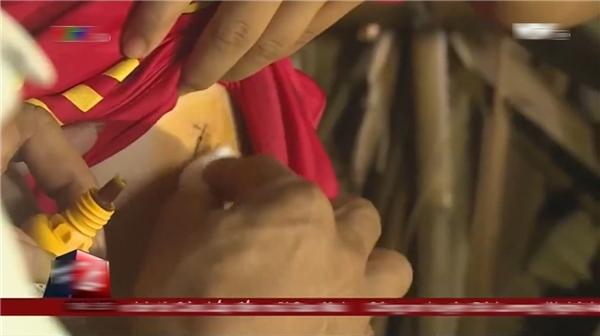 Vết thương của T.được các bác sĩ tại Bệnh viện Đa khoa tỉnh Vĩnh Long, sau 3 ngày điều trị, cho biết là không sâu, không nguy hiểm đến tính mạng.