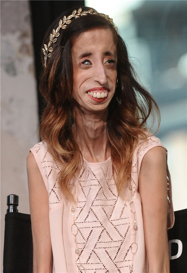 """Lizzie Velasquez – cô gái được cư dân mạng thế giới gọi là """"cô gái xấu xí nhất thế giới"""". (Ảnh: Metro)"""
