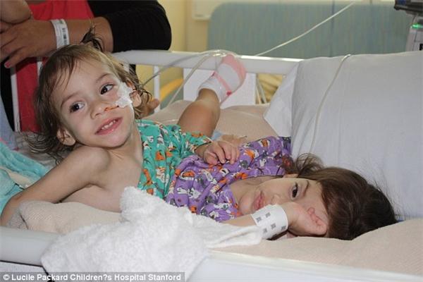 Xúc động cặp song sinh dính liền xương ức đoàn tụ sau phẫu thuật