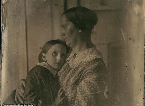 Không rõ cô bé này chết với đôi mắt mở to, hay làđã có sự can thiệp từ nhiếp ảnh gia và người mẹ?
