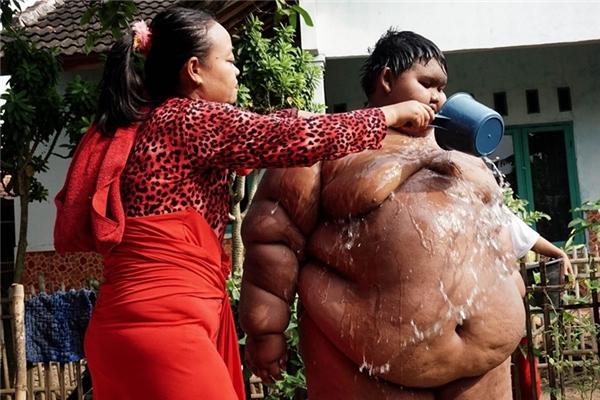 Đây là Arya Permana (10 tuổi, Indonesia). Với cận nặng 192kg, Arya đang mang trong người căn bệnh béo phì. Vì thế cậu bé đã gặp phải rất nhiều khó khăn trong sinh hoạt hằng ngày, thậm chí Arya không thể đến trường như bạn bè đồng trang lứa. Việc làm hằng ngày của cậu bé là nằm trên sàn và chơi điện tử.