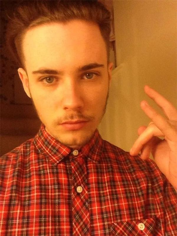 Kieran Lister, 20 tuổi, hiện đang sống tại Leeds. (Ảnh: Mirror)