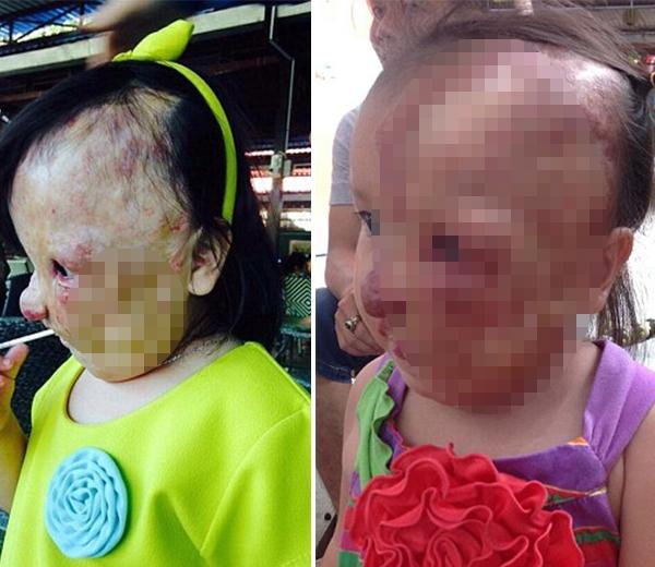 Gia đình của cô bé đã từngtuyệt vọng khi không thể nào chi trả tiền chữa trị cho em.