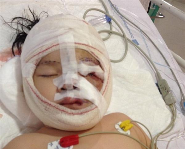 Cô bé được tài trợ để đến Tây Ban Nha phẫu thuật.