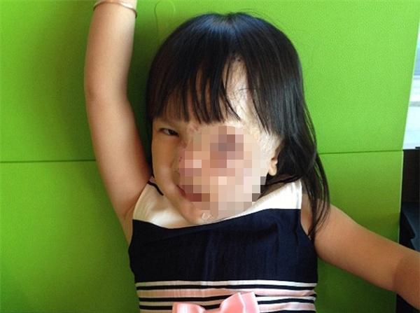 Hai ca phẫu thuật đã đem lại diện mạo mới cho bé gái 5 tuổi.