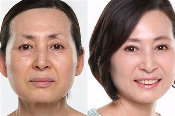 Khi quá trình lão hóa có thể đảo ngược.