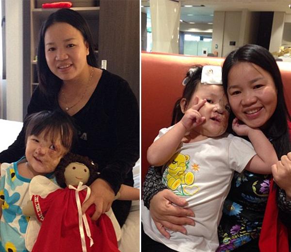 Khuôn mặt mới của bé Nguyệtsau khi trảiqua phẫu thuật.