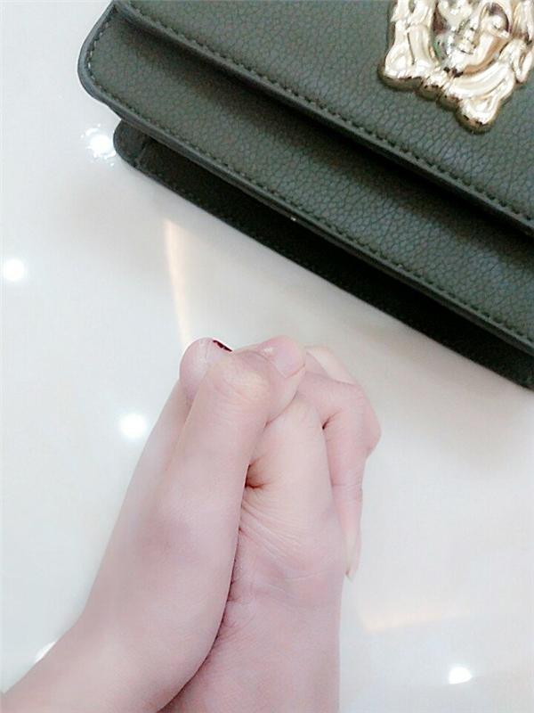 Thế nhưng anh ấy không phải là người duy nhất đâu. Các bạn thấy đôi bàn tay nắm chặt này có gìkì lạ không? Hình như có điều gì đó hơi sai sai thìphải.(Ảnh: Internet)