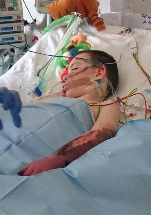 Nghiêng mình trước nghị lực của bé trai 8 tuổi bị cụt 2 chân và 1 tay