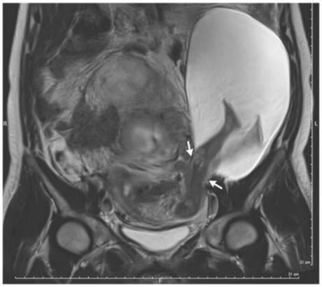 Hình ảnh siêu âm cho thấy chân em bé đã đạp ra ngoài tử cung người mẹ. (Ảnh: internet)