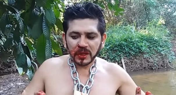 Khuôn mặt sợ hãi dính be bét máu của kẻ nghịch dại. (Ảnh: Internet)