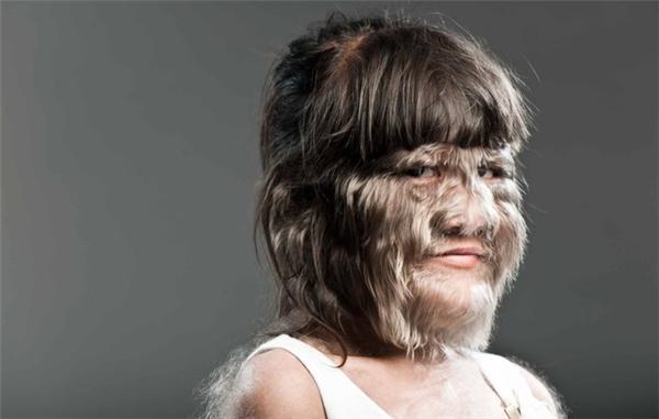 """Thiếu niên rậm lông nhất: Supatra """"Nat"""" Sasuphan (người Thái Lan)"""
