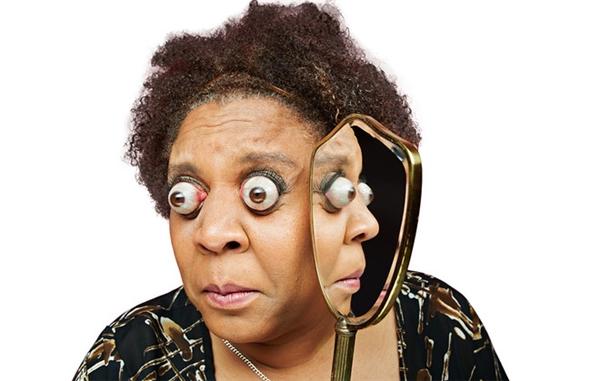 Mắt lồi xa nhất: Kim Goodman (người Mỹ) với cặp mắt có thể lồi ra khỏi hốc mắt xa đến 12mm