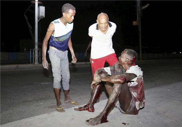 Một người đàn ông Somali bị thương ngồi trên vỉa hè gần hiện trường một vụ tấn công bằng bom gần một khách sạn ở quận Hamarweyne (Mogadishu, Somali) vào ngày 26/2.