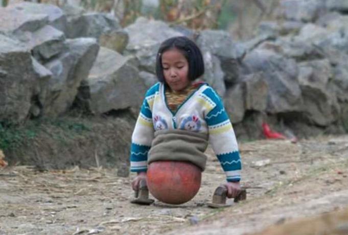 Cô bé bóng rổ bị cắt toàn bộ thân dưới ngày ấy giờ ra sao?