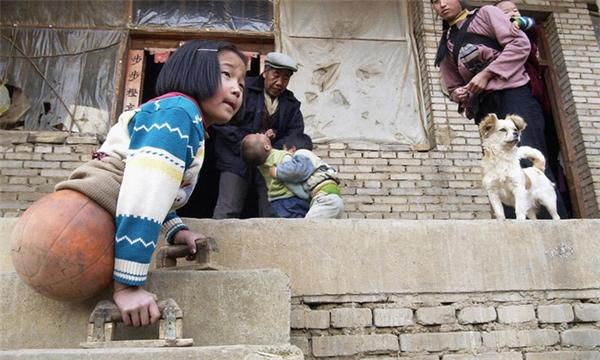 Vì nhà quá nghèo không có tiền lắp chân giả, ông nội của cô bé đã cắt một quả bóng rổ lắp vào người cháu gái để tiện di chuyển.