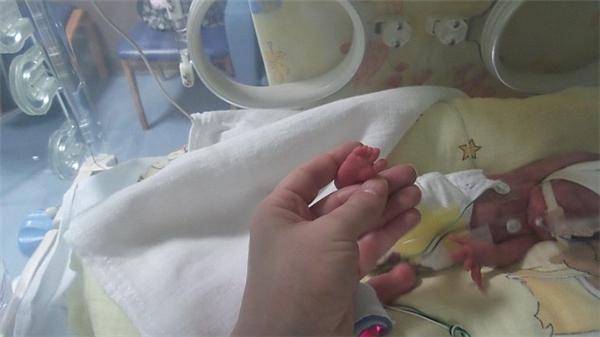 Các bé nhỏ đến mức bàn chân lọt thỏm giữa hai ngón tay của Claire.