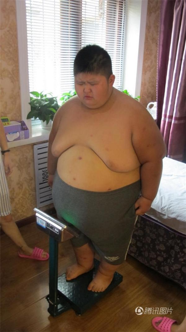 Cậu bé khổng lồ nặng khoảng 90kg và nhanh chóng nhận được rất nhiều sự giúp đỡ của các nhà hảo tâm, sau đó được đưa đến điều trị miễn phí tại một trung tâm huấn luyện giảm béo.