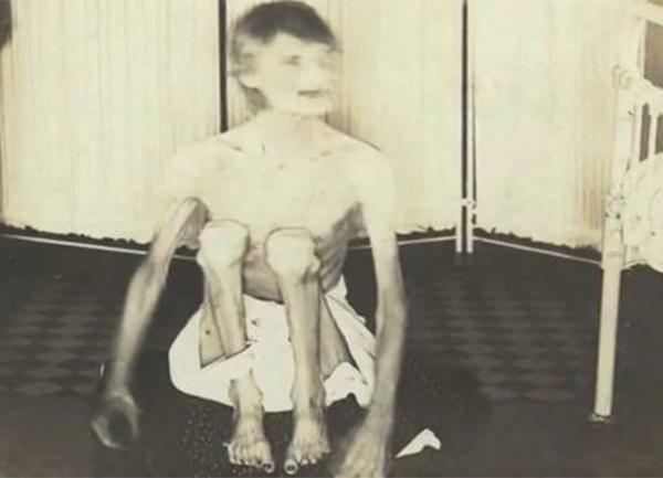 Thân hình gầy trơ xương khiến người nhìn phải xót xa lòng. (Ảnh: Internet)