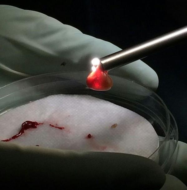 Túi nang sán cản trở sự lưu thông máu. (Ảnh: Internet)