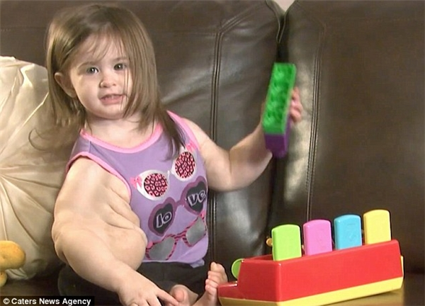 Vì căn bệnh quái ác nên hai tay của Madison mới phát triển không đồng đều. Khác với cánh tay trái nhỏ nhắn, cánh tay phải của bé tại sưng to, chảy xệ như quả dưa hấu.