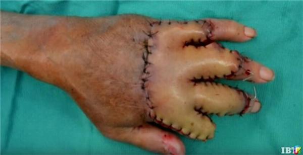 Sau nhiều cố gắng, cuối cùng bàn tay ông cụđã bắt đầu có những tínhiệu hồi phục khả quan. (Ảnh: AP, IBT)