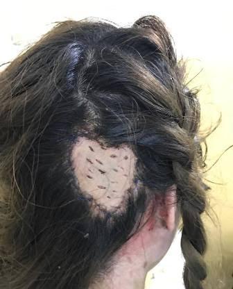Những tai nạn vì làm tóc cũng rất khó lường.(Ảnh: Internet)