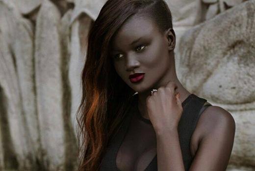 Ngưỡng mộ 6 cô nàng có làn da đặc biệt nhất thế giới