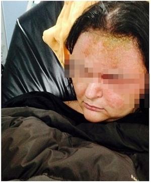 Sau khi nhuộm tóc về, tình hình sức khỏe của cô Triệu ngày càng chuyển xấu. (Ảnh minh họa: Internet)