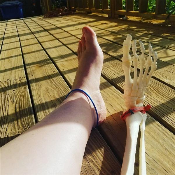 Ngã ngửa với cô nàng vác chiếc chân bị cưa bỏ đi khắp thế gian