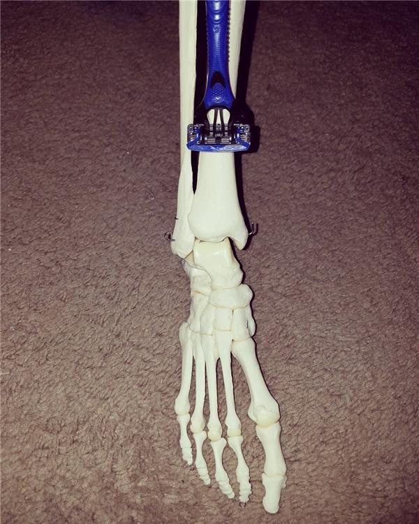 Cô nàng còn đặt tên cho chiếc chân... trơ xương của mình là Footzilla.