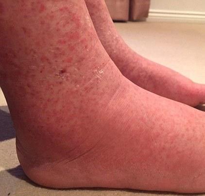 Đôi chân củaDouglasbị sưng phù cùng những nốt ban ngày càng lan rộng.