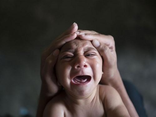 Đã có bé bị dị tật đầu nhỏ do virus Zika. (Ảnh minh họa - Nguồn: Internet)